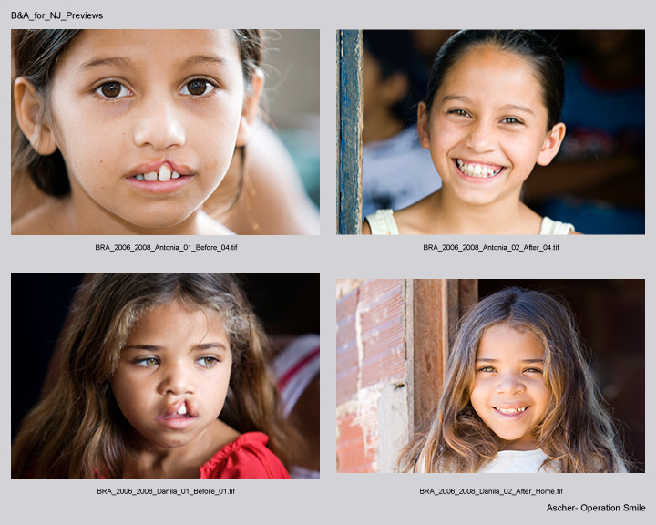 Operation Smile B&A_for_Christina-1